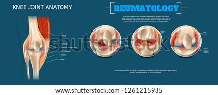 Realistic Banner Illustration Knee Joint Anatomy. 3d Vector Reumatology Image Constituent Elements Structure Human Knee Joint Muscle, Bursa, Cartilage, Synovial Membrane, Jont Capsule, Tendon, Bone.