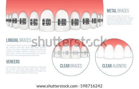 Realistic upper jaw with healthy tooth and dental braces. All types of braces: metal, lingual, clear braces and clear aligners. Vector illustration with place for your text