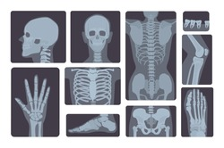 Realistic x-ray shots collection. Human body:  hand, leg, skull, foot, chest, teeth, spine and other.