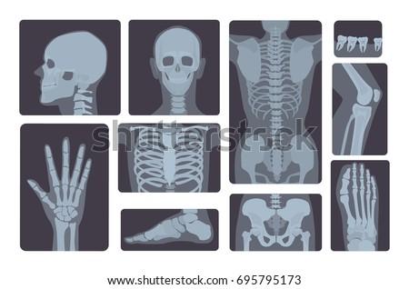 realistic x ray shots