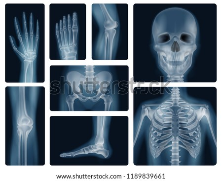 Realistic x-ray shots of human bones of skull pelvis thorax knee and limbs isolated vector illustration   Foto d'archivio ©