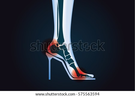 Red signal at foot bone area because wearing high heels. This illustration about health care.