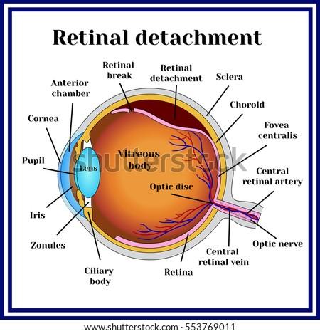 Retinal detachment. Detachment of the retina from choroid. ストックフォト ©