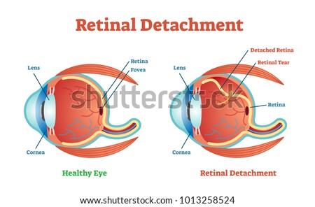 Retinal Detachment vector illustration diagram, anatomical scheme. Medicinal educational information.  ストックフォト ©