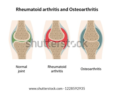 Rheumatoid arthritis and osteoarthritis of the joint. Images of healthy joint and diseased joints isolated on white background. Vector illustration