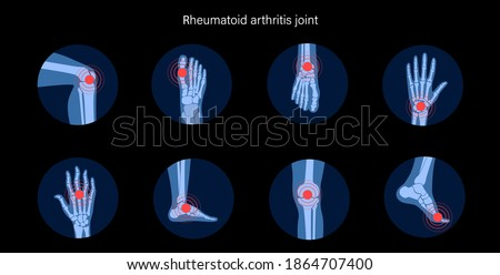 Rheumatoid arthritis, pain, bone disease concept. Set with spine, knee, ankle and other joint icons. Inflammation in parts of the human body, anatomical medical poster. Xray flat vector illustration. ストックフォト ©