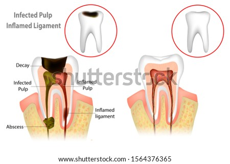 Root Canal Treatment. Infected Pulp and Inflamed Pulp