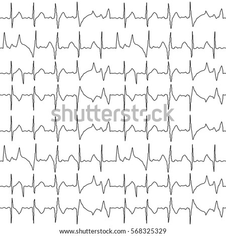 Seamless pattern of the ekg cardiograms chart.