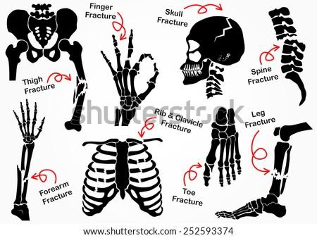 set bone fracture icon   pelvic