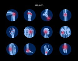 Set with spine, knee, wrist and other joint icons for clinic. Pain in the human body, anatomical logo concept. Arthritis, inflammation, bone disease medical poster or banner. Flat vector illustration.