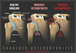 Shoulder osteoarthritis infographic. Realistic bones scheme. Joint pain. Editable vector illustration isolated on a dark grey background. Medical, healthcare, elderly diseases graphic concept