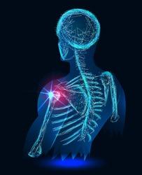 Shoulder painful. Skeleton, 3D Illustration medical concept. Polygonal vector.