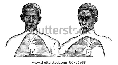 Siamese twins. V. Vena cava. f. Upper limit of the common axis, vintage engraved illustration. Trousset encyclopedia (1886 - 1891).