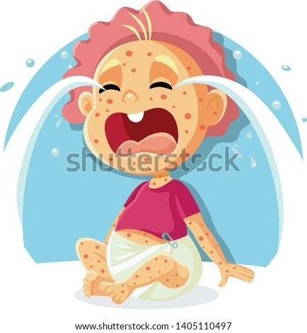 Sick Crying Baby with Measles Illustration. Newborn in tears suffering from contagious disease
