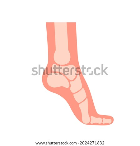 Silhouette human foot with bones, orthopedic leg, healthy feet. Foot deformation, defect, pathologies of foot, flat foot. Supination and pronation. Vector illustration
