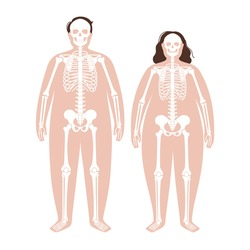 Skeleton system human bones concept. X ray with overweight male and female silhouette. Skull, arms, legs, knee and foot. Ribs and hand joints. Obese man, and woman body anatomical vector illustration.