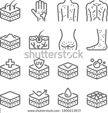 Skin allergy icon illustration vector set. Contains such icon as Acne, Atopic, itchy, Dry skin, Rash, Epidermis, Dermatology and more. Expanded Stroke