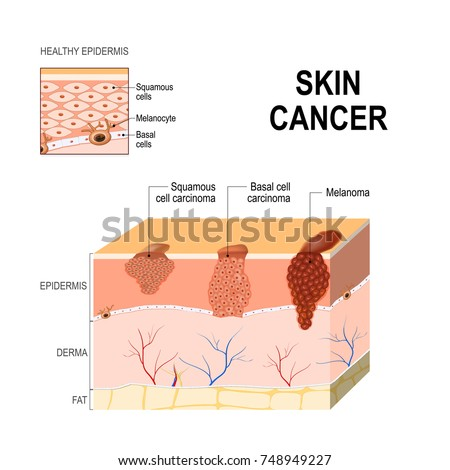 Skin cancer: Squamous cell carcinoma, basal-cell cancer (begins in the basal cells) and Melanoma (arises in the pigment cells, melanocytes). layers of human skin and healthy epidermis. medical diagram