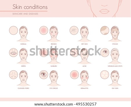 Skin conditions and problems, skincare and dermatology concept