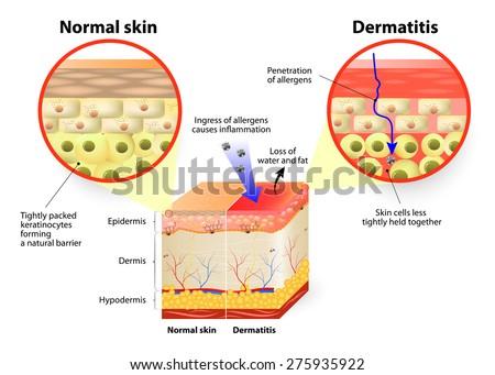 Skin Disease Dermatitis Or Eczema Labeled Diagram Stock