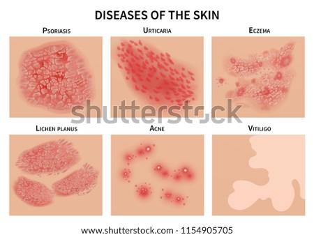 Skin diseases. Derma infection, eczema and psoriasis. Dermatology vector illustration. Disease medical epidermis, dermatitis infection