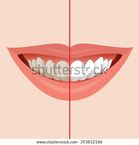 smiling mouth with cleaning