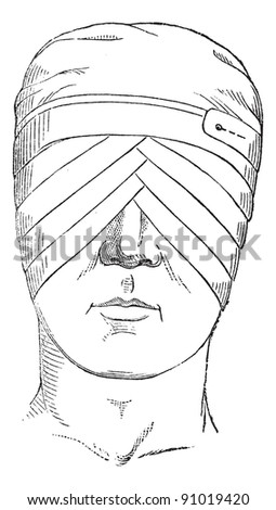 Spectacles or eye bandage crosses two globes, vintage engraved illustration. Usual Medicine Dictionary - Paul Labarthe - 1885.