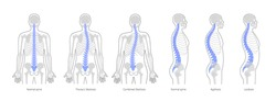 Spinal deformity flat vector illustration. Kyphosis, lordosis and scoliosis of spine infographics.. Body posture defect. Medical, educational and science banner
