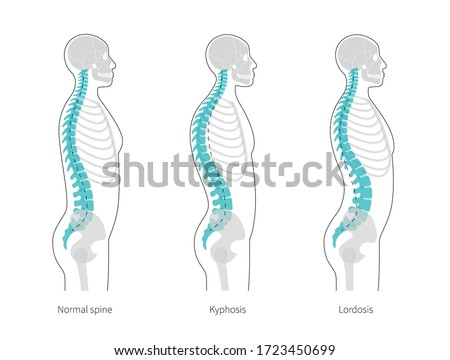 Spinal deformity flat vector illustration. Kyphosis, lordosis of spine infographics. Diagram with spine curvatures and healthy backbone. Body posture defect. Medical, educational and science banner.