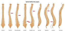 Spinal deformity types. Anterior view and lateral view. Vector illustration