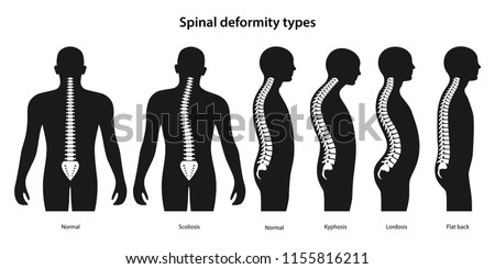 Spinal deformity types. White spine on a black body. Anterior view and lateral view. Vector illustration