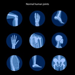 Spine, knee, skull and other human joints icon. Normal bones anatomy. Skeletal x ray medical poster. Orthopedic or chiropractic treatment. Anatomical logo for clinic. Isolated flat vector illustration