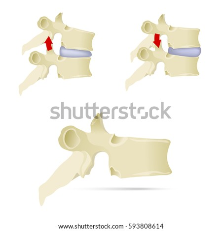 spine  lumbar vertebra facet