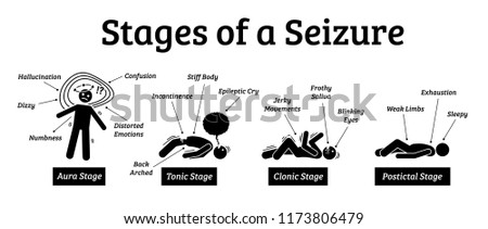 Stages and phases of a seizure. Illustrations depicts the phases when a person get a seizure which are the aura, tonic, clonic, and postictal stages.
