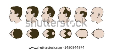 Stages of baldness, transplantation and hair extensions, treatment of baldness
