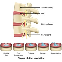 Stages of disc herniation spine and disc anatomy 3d medical vector illustration eps 10