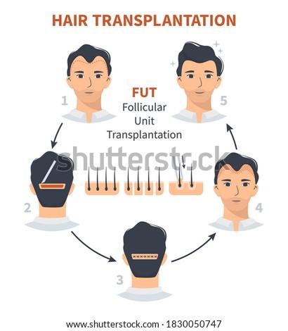 Stages of hair transplantation FUT Follicular Unit. Treatment of baldness, alopecia, mens hair loss. Vector medical circle infographics, a male head scalp. Strip, graft machine. Stock fotó ©