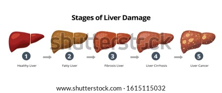 Stages of liver damage from healthy, fatty liver, fibrosis, cirrhosis to liver cancer. Medical infographic, liver diseases icons in flat design isolated on white background. Сток-фото ©