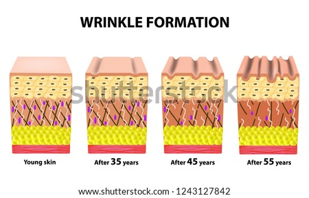 Stages of wrinkles at different ages. Anatomical structure of the skin. Elastin, Hyaluronic acid, Collagen. Infographics. skin aging. Vector illustration on isolated background.