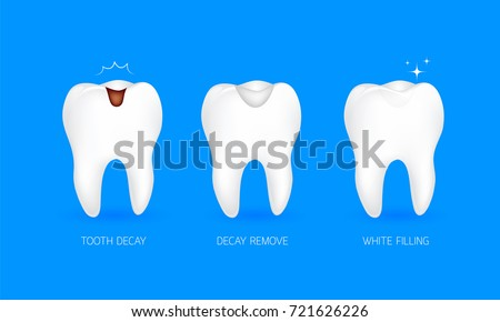 Step of tooth filling. Tooth decay, decay remove and white filling. Illustration isolated on blue background. Dental care concept.