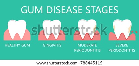 Stomatological concept. The stages of gum disease, the stage of development of dental periodontitis. Vector illustration.