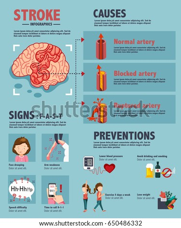 stroke   ischemic and