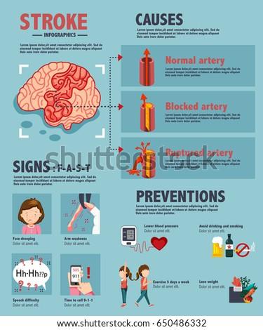 stroke - ischemic and hemorrhagic disease, medical infographics, illustration, vector