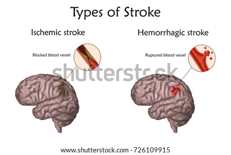 Stroke types poster, banner. Hemorrhagic, ischemic. Vector medical illustration. white background, anatomy image of damaged human brain, blocked and ruptured blood vessels.