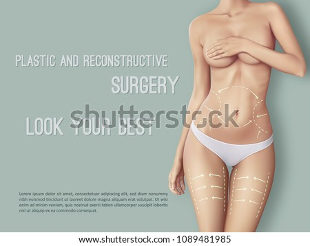d57a73687a1 Surgical lines on beautiful woman's body. Closeup of female slim fit body  with white marks
