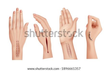 Surgical stitches on hands. Closeup scars and wounds on human hand medical damaged skin decent vector realistic templates Foto d'archivio ©