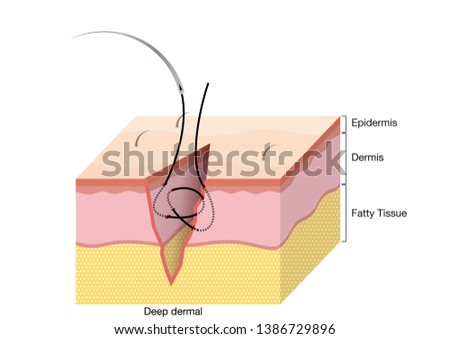 Surgical Suturing Techniques, Suturing Techniques, Deep dermal