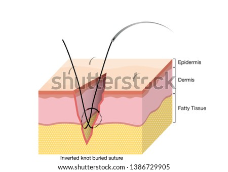 Surgical Suturing Techniques, Suturing Techniques, Inverted knot buried suture