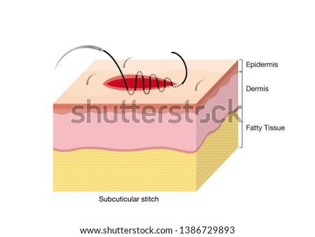 Surgical Suturing Techniques, Suturing Techniques, Subcuticular stitch