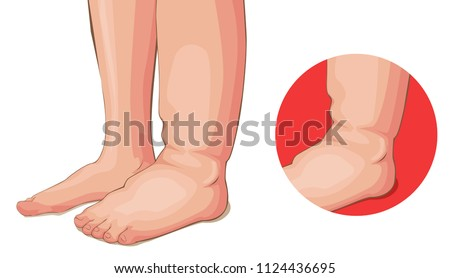 Swelling feet or kidney problems medical vector cartoon Stockfoto ©